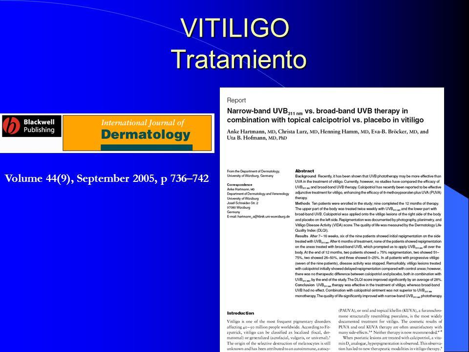 Volume 44(9), September 2005, p 736–742 VITILIGO Tratamiento