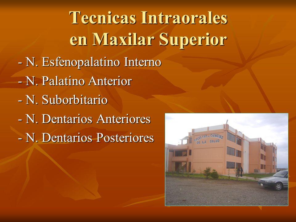 Tecnicas Intraorales en Maxilar Superior - N. Esfenopalatino Interno - N. Palatino Anterior - N. Suborbitario - N. Dentarios Anteriores - N. Dentarios