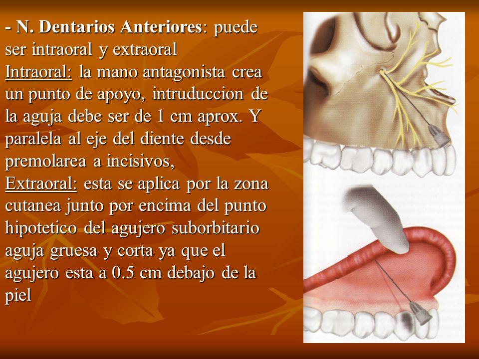 - N. Dentarios Anteriores: puede ser intraoral y extraoral Intraoral: la mano antagonista crea un punto de apoyo, intruduccion de la aguja debe ser de