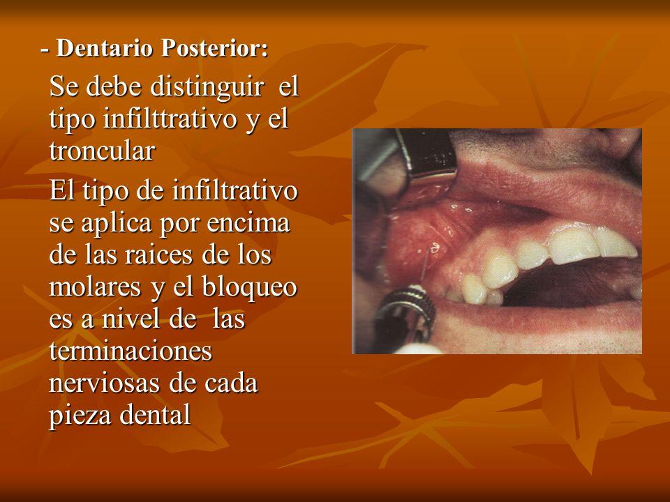 - Dentario Posterior: Se debe distinguir el tipo infilttrativo y el troncular El tipo de infiltrativo se aplica por encima de las raices de los molare