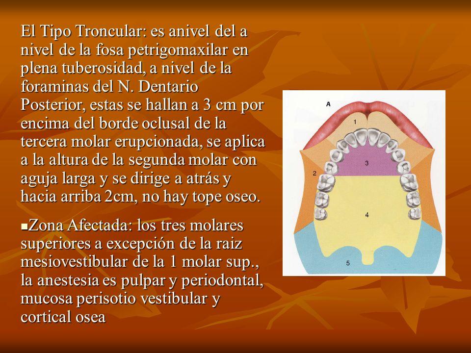El Tipo Troncular: es anivel del a nivel de la fosa petrigomaxilar en plena tuberosidad, a nivel de la foraminas del N. Dentario Posterior, estas se h