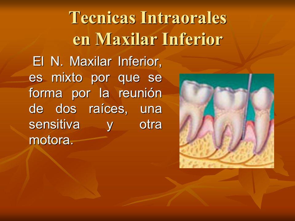 Tecnicas Intraorales en Maxilar Inferior El N. Maxilar Inferior, es mixto por que se forma por la reunión de dos raíces, una sensitiva y otra motora.