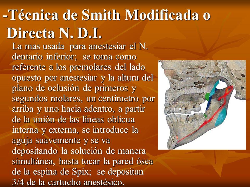 -Técnica de Smith Modificada o Directa N. D.I. La mas usada para anestesiar el N. dentario inferior; se toma como referente a los premolares del lado