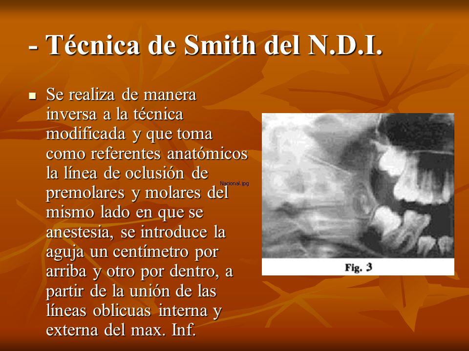 - Técnica de Smith del N.D.I. Se realiza de manera inversa a la técnica modificada y que toma como referentes anatómicos la línea de oclusión de premo