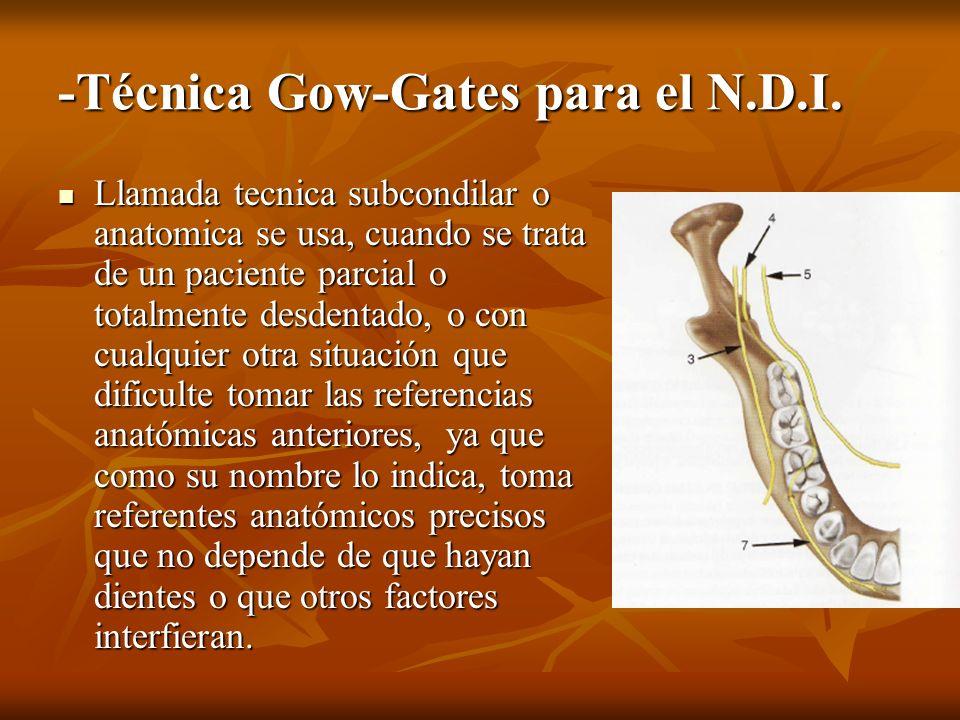 -Técnica Gow-Gates para el N.D.I. Llamada tecnica subcondilar o anatomica se usa, cuando se trata de un paciente parcial o totalmente desdentado, o co