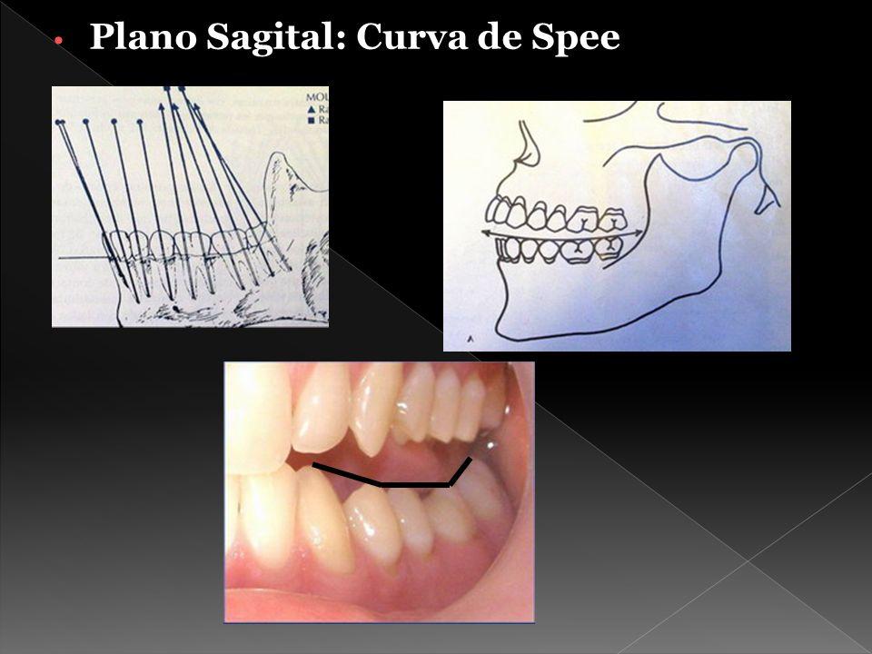 Curva de Spee cóncava A Curva de Spee plana B Curva de Spee convexa C En caso de que la curva no fuera ligeramente plana, los dientes de un arco estarían apiñados, mientras que los del otro estarían espaciados.