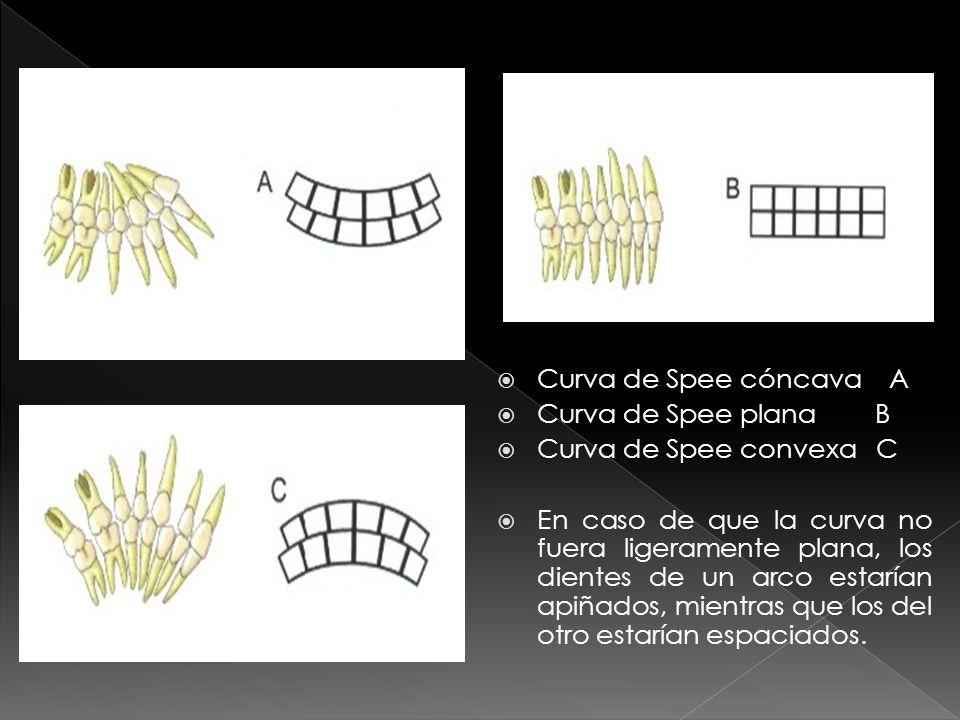Es la inclinación mediolateral y la curvatura del plano oclusal.