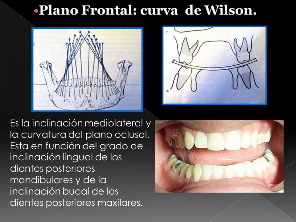 Es la inclinación mediolateral y la curvatura del plano oclusal. Esta en función del grado de inclinación lingual de los dientes posteriores mandibula