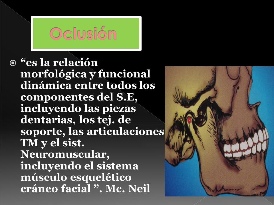 1- Trayectoria Incisiva 2- Alineación Tridimensional dientes posteriores : - Plano de oclusión - Curvas oclusales - Altura cuspídea 3- A.T.M – Trayectorias condíleas