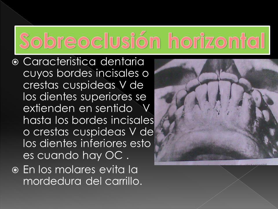 Caracteristica dentaria cuyos bordes incisales de los dientes anteriores superiores se extienden por debajo de los bordes incisales de los dientes anteriores inferiores,esto es en OC.