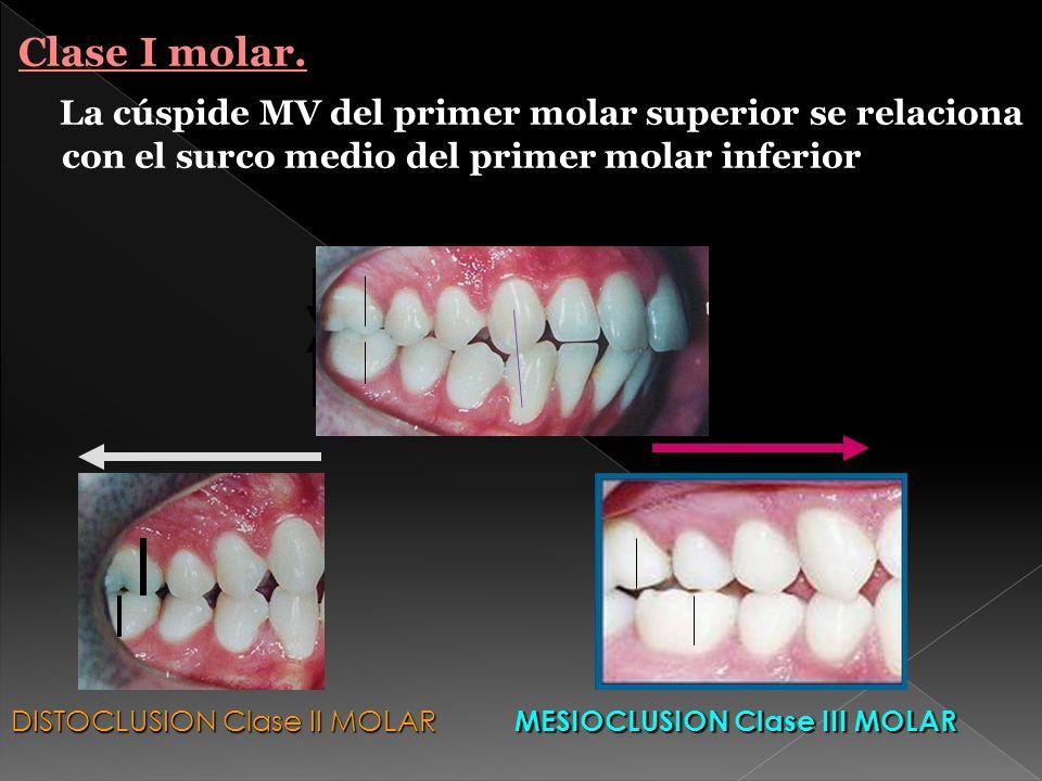 Estableció 138 puntos de posibles contactos oclusales : -Superficies L de incisivos y caninos S(6) -Superficie labial de incisivos y caninos I (6) -CT de cúspides V de premolares y molares S,(16) -CT de cúspides L de premolares y molares I (16) -Espacio I.V de premolares y molares I (8) -Espacio I.L de premolares y molares S (10)