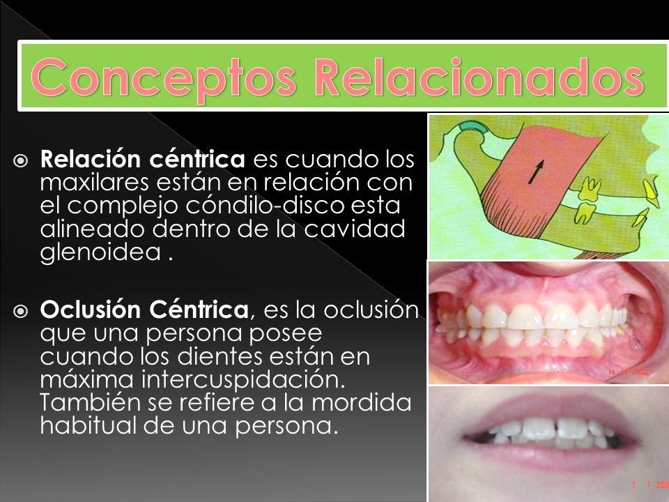 Oclusión en R. C.: Los cóndilos se encuentran en R.C. y los dientes en máxima intercuspidación.
