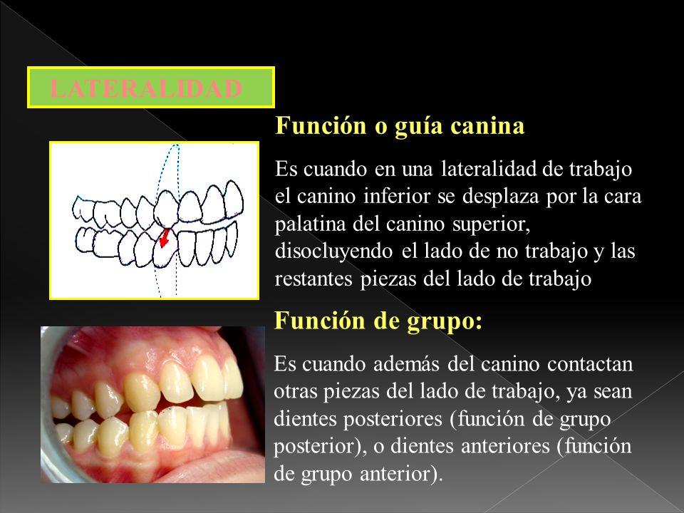 1-Forma y volumen radicular 2-Relación corono radicular 1 a 2 3-Densidad tejido óseo 4-Sensibilidad sistema propioceptivo 5-Alejamiento punto fijo de palanca ¿ Por que los caninos .