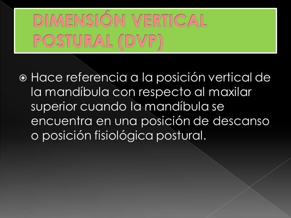 Hace referencia a la posición vertical de la mandíbula con respecto al maxilar superior cuando la mandíbula se encuentra en una posición de descanso o