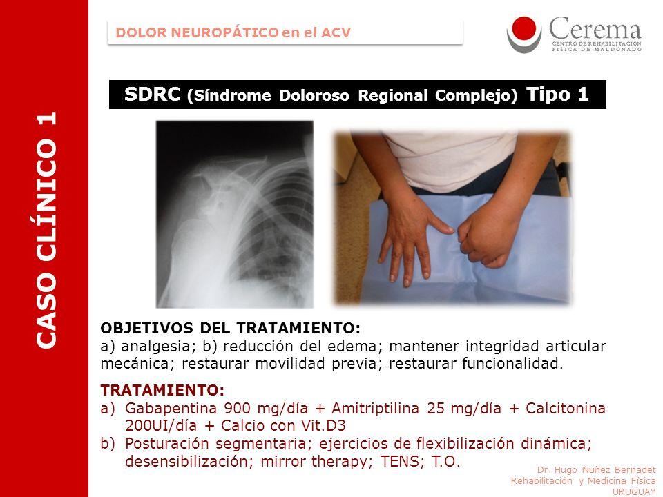 CASO CLÍNICO 1 SDRC (Síndrome Doloroso Regional Complejo) Tipo 1 DOLOR NEUROPÁTICO en el ACV Dr. Hugo Nüñez Bernadet Rehabilitación y Medicina Física