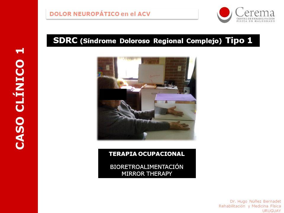Dr. Hugo Nüñez Bernadet Rehabilitación y Medicina Física URUGUAY DOLOR NEUROPÁTICO en el ACV CASO CLÍNICO 1 SDRC (Síndrome Doloroso Regional Complejo)