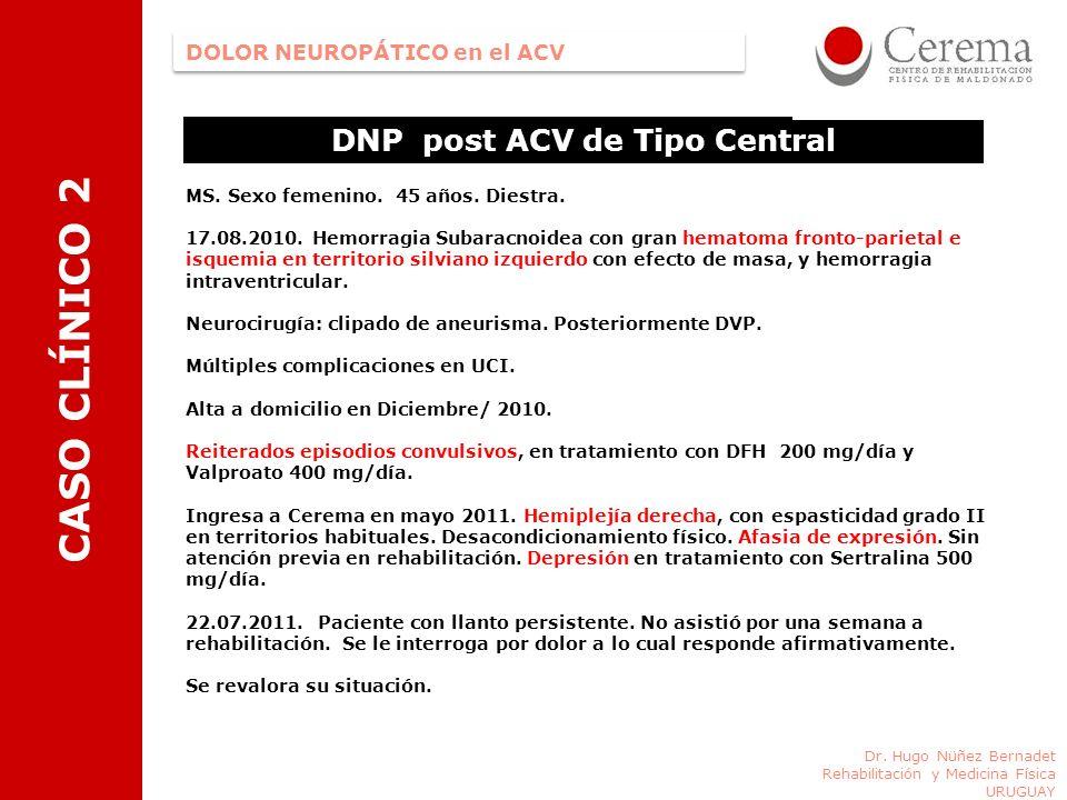 DNP post ACV de Tipo Central Dr. Hugo Nüñez Bernadet Rehabilitación y Medicina Física URUGUAY DOLOR NEUROPÁTICO en el ACV CASO CLÍNICO 2 MS. Sexo feme