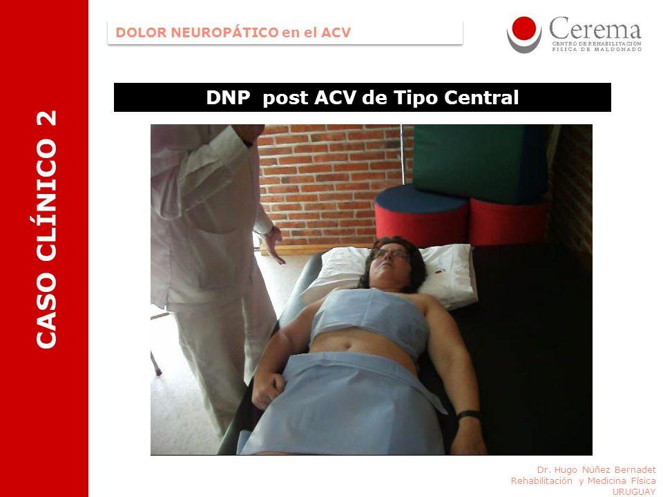DNP post ACV de Tipo Central Dr. Hugo Nüñez Bernadet Rehabilitación y Medicina Física URUGUAY DOLOR NEUROPÁTICO en el ACV CASO CLÍNICO 2