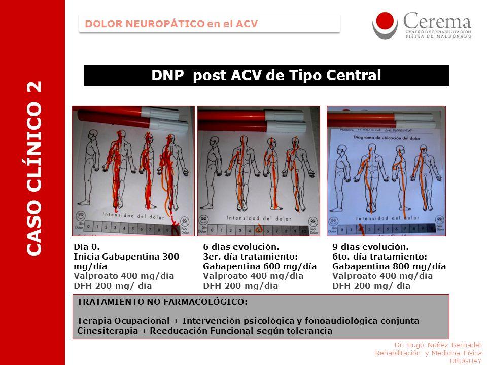 DOLOR NEUROPÁTICO en el ACV Dr. Hugo Nüñez Bernadet Rehabilitación y Medicina Física URUGUAY DNP post ACV de Tipo Central Día 0. Inicia Gabapentina 30