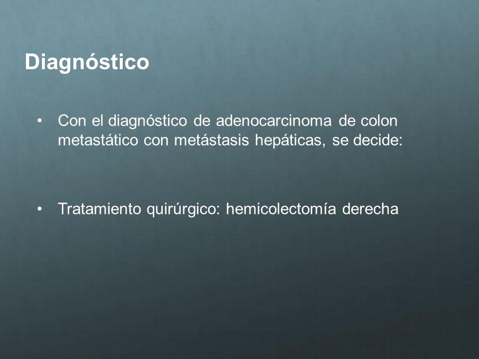 Diagnóstico Con el diagnóstico de adenocarcinoma de colon metastático con metástasis hepáticas, se decide: Tratamiento quirúrgico: hemicolectomía dere