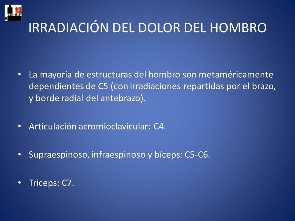 IRRADIACIÓN DEL DOLOR DEL HOMBRO La mayoría de estructuras del hombro son metaméricamente dependientes de C5 (con irradiaciones repartidas por el braz