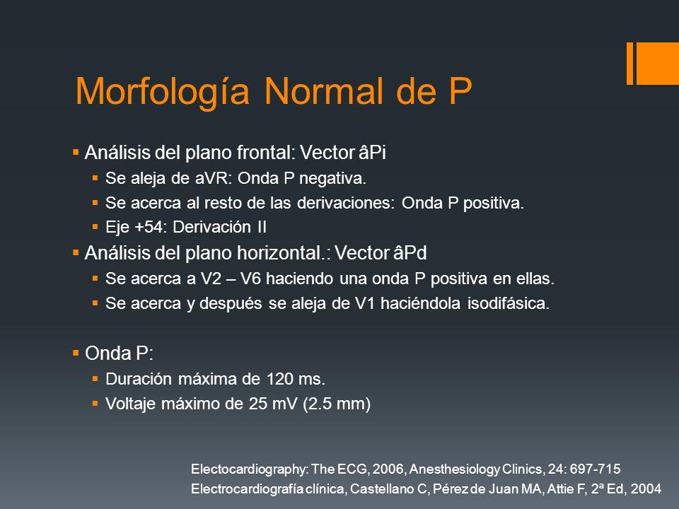 Morfología Normal de P Análisis del plano frontal: Vector âPi Se aleja de aVR: Onda P negativa. Se acerca al resto de las derivaciones: Onda P positiv