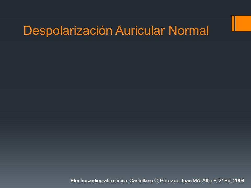 Despolarización Auricular Normal Electrocardiografía clínica, Castellano C, Pérez de Juan MA, Attie F, 2ª Ed, 2004