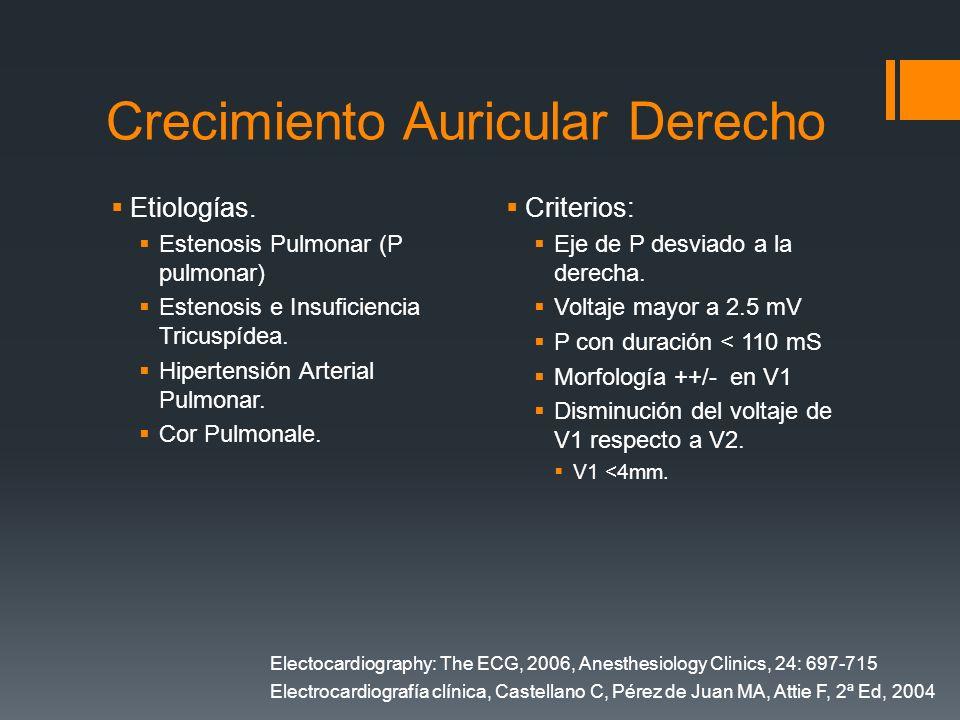 Crecimiento Auricular Derecho Etiologías. Estenosis Pulmonar (P pulmonar) Estenosis e Insuficiencia Tricuspídea. Hipertensión Arterial Pulmonar. Cor P