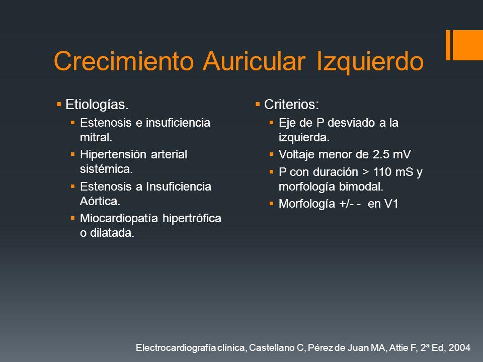 Crecimiento Auricular Izquierdo Etiologías. Estenosis e insuficiencia mitral. Hipertensión arterial sistémica. Estenosis a Insuficiencia Aórtica. Mioc