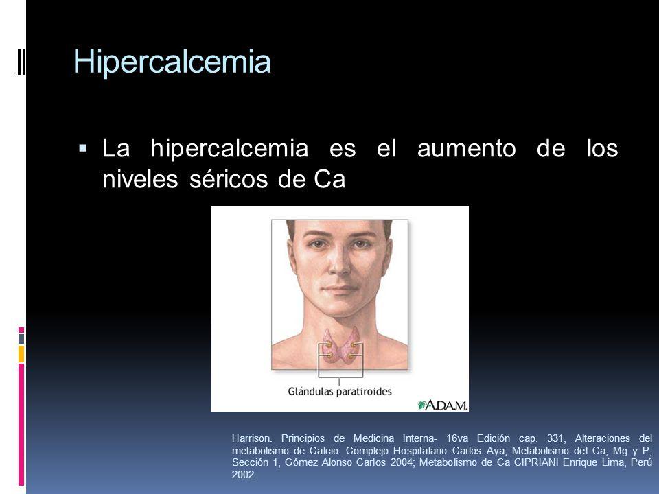 Hipercalcemia La hipercalcemia es el aumento de los niveles séricos de Ca Harrison. Principios de Medicina Interna- 16va Edición cap. 331, Alteracione