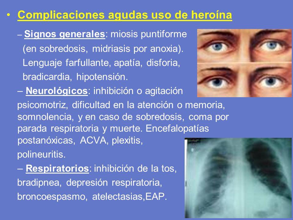 Complicaciones agudas uso de heroína – Signos generales: miosis puntiforme (en sobredosis, midriasis por anoxia). Lenguaje farfullante, apatía, disfor
