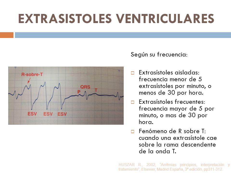 EXTRASISTOLES VENTRICULARES Según su frecuencia: Extrasístoles aisladas: frecuencia menor de 5 extrasístoles por minuto, o menos de 30 por hora. Extra