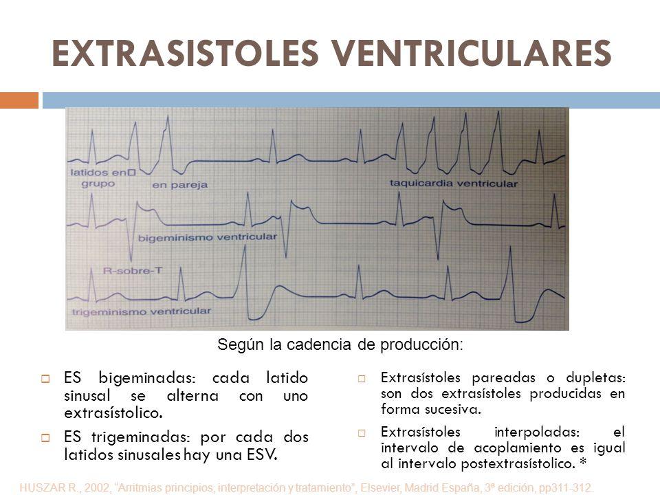 EXTRASISTOLES VENTRICULARES ES bigeminadas: cada latido sinusal se alterna con uno extrasístolico. ES trigeminadas: por cada dos latidos sinusales hay