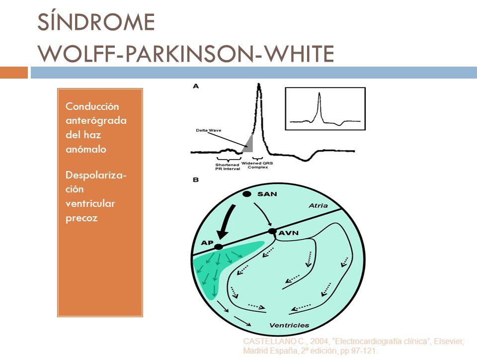 SÍNDROME WOLFF-PARKINSON-WHITE Conducción anterógrada del haz anómalo Despolariza- ción ventricular precoz CASTELLANO C., 2004, Electrocardiografía cl