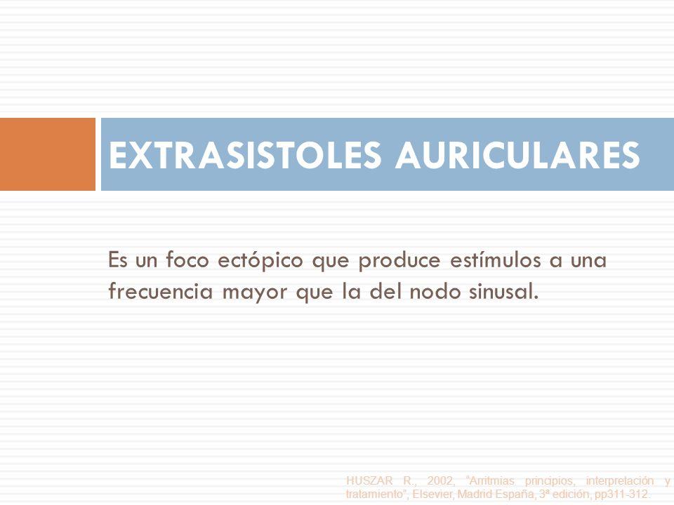 Es un foco ectópico que produce estímulos a una frecuencia mayor que la del nodo sinusal. EXTRASISTOLES AURICULARES HUSZAR R., 2002, Arritmias princip