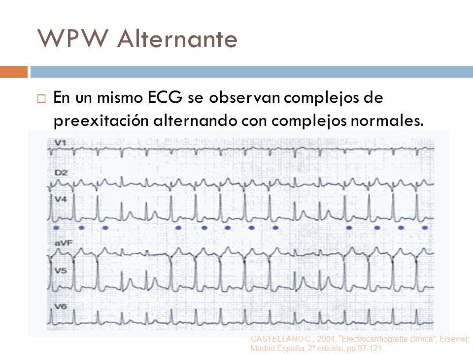 WPW Alternante En un mismo ECG se observan complejos de preexitación alternando con complejos normales. CASTELLANO C., 2004, Electrocardiografía clíni