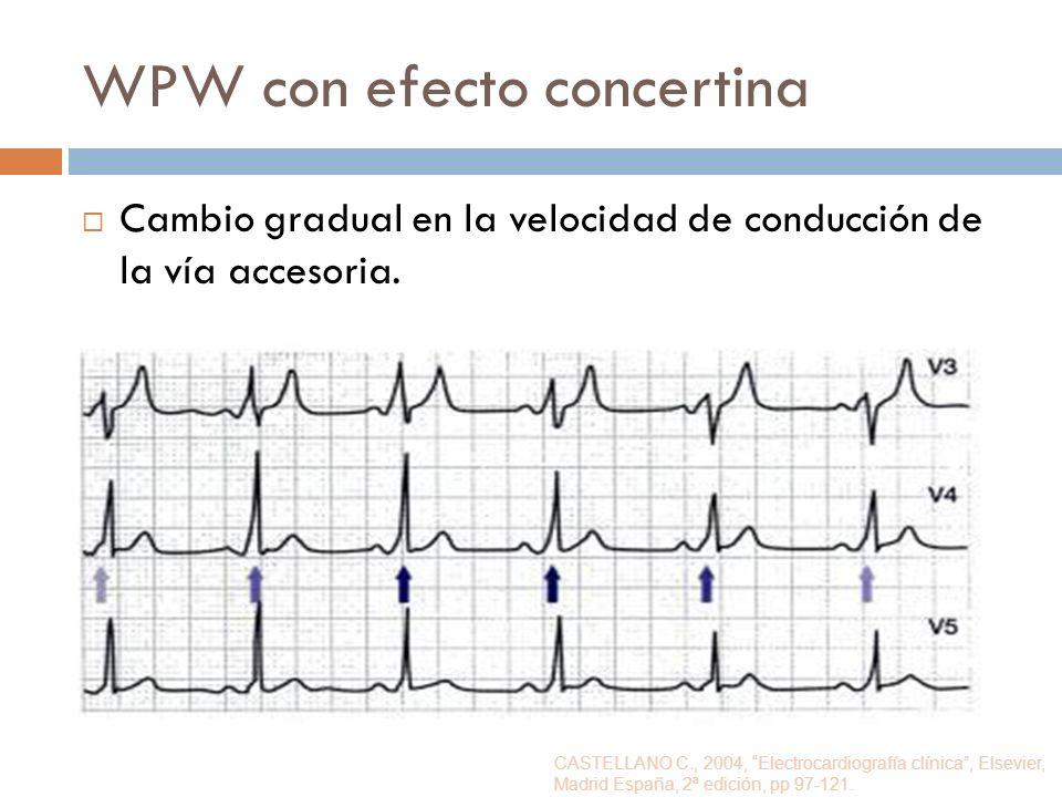 WPW con efecto concertina Cambio gradual en la velocidad de conducción de la vía accesoria. CASTELLANO C., 2004, Electrocardiografía clínica, Elsevier