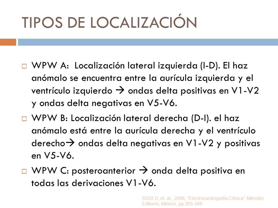 TIPOS DE LOCALIZACIÓN WPW A: Localización lateral izquierda (I-D). El haz anómalo se encuentra entre la aurícula izquierda y el ventrículo izquierdo o