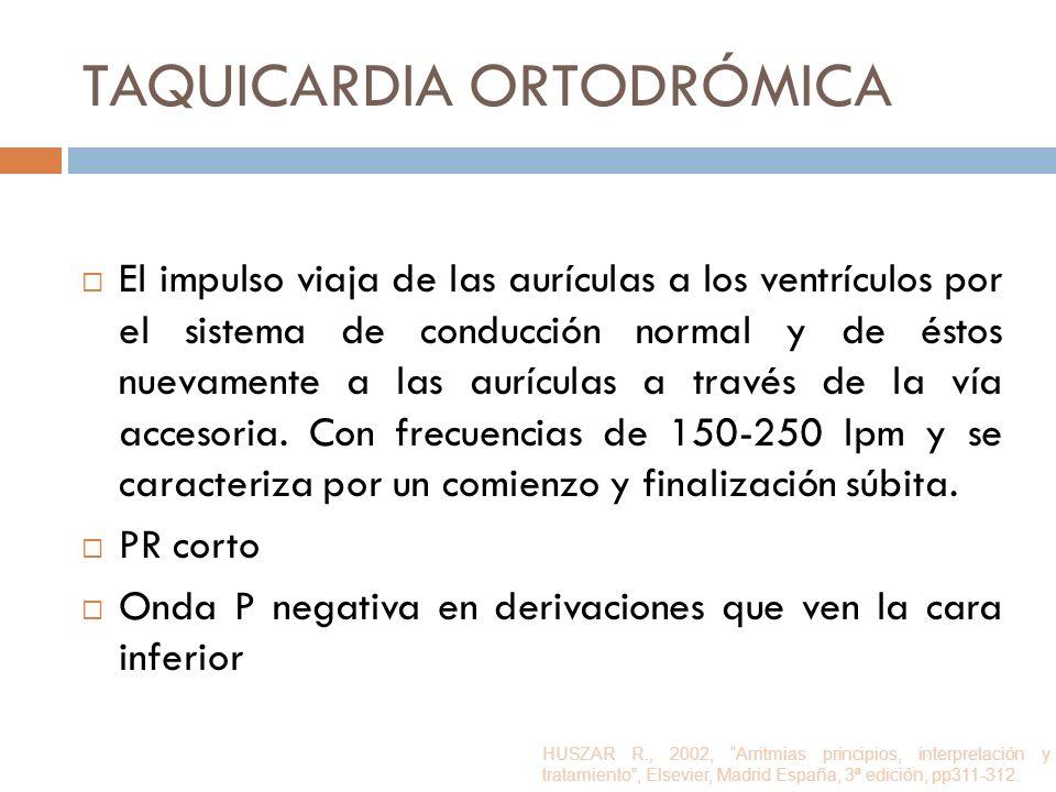 TAQUICARDIA ORTODRÓMICA El impulso viaja de las aurículas a los ventrículos por el sistema de conducción normal y de éstos nuevamente a las aurículas