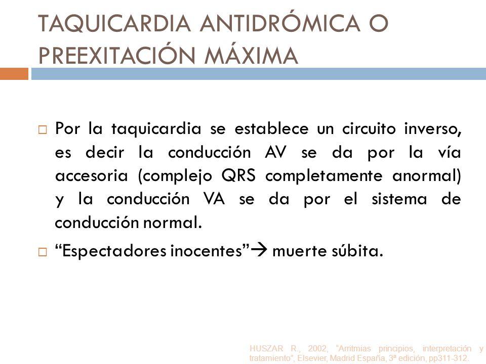 TAQUICARDIA ANTIDRÓMICA O PREEXITACIÓN MÁXIMA Por la taquicardia se establece un circuito inverso, es decir la conducción AV se da por la vía accesori