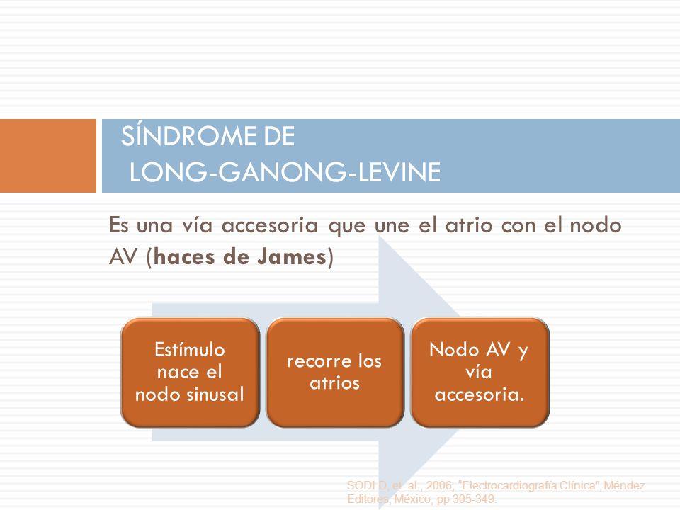 Es una vía accesoria que une el atrio con el nodo AV (haces de James) SÍNDROME DE LONG-GANONG-LEVINE Estímulo nace el nodo sinusal recorre los atrios