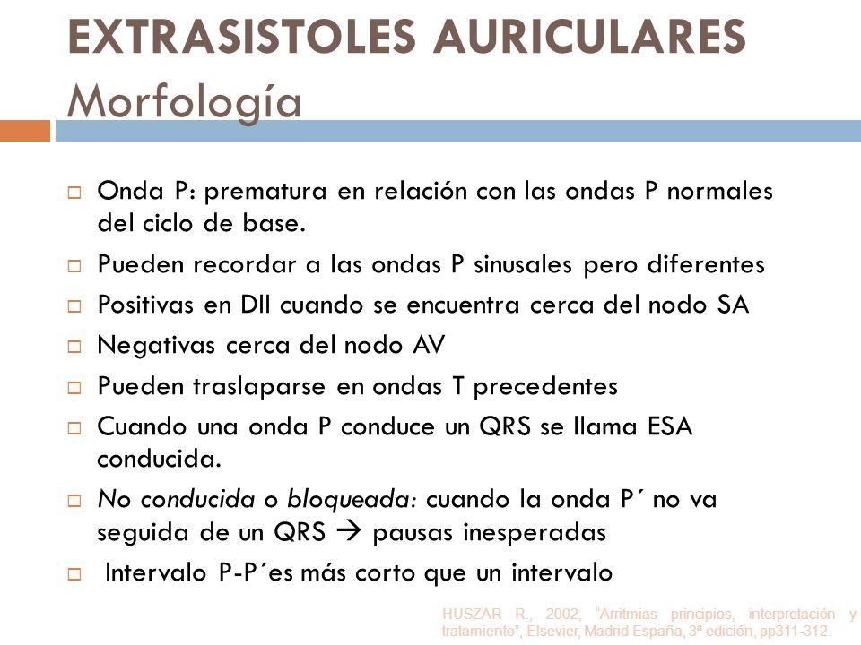 EXTRASISTOLES AURICULARES Morfología Onda P: prematura en relación con las ondas P normales del ciclo de base. Pueden recordar a las ondas P sinusales