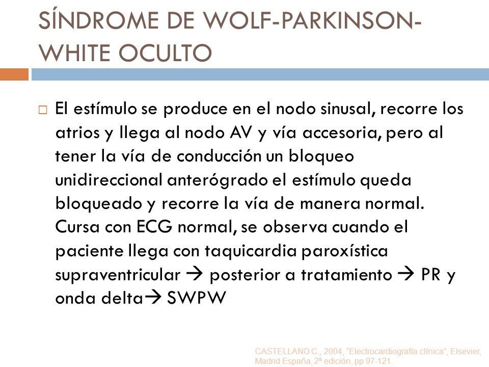 SÍNDROME DE WOLF-PARKINSON- WHITE OCULTO El estímulo se produce en el nodo sinusal, recorre los atrios y llega al nodo AV y vía accesoria, pero al ten