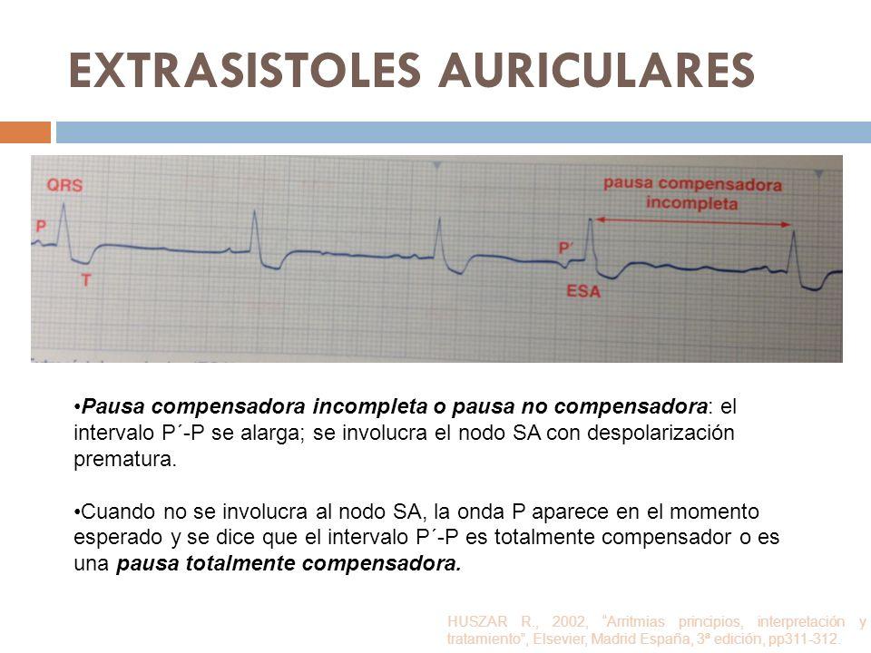 EXTRASISTOLES AURICULARES Pausa compensadora incompleta o pausa no compensadora: el intervalo P´-P se alarga; se involucra el nodo SA con despolarizac