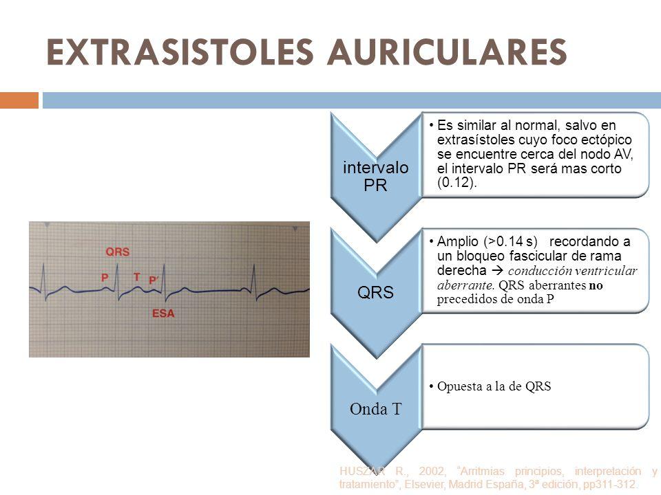 EXTRASISTOLES AURICULARES intervalo PR Es similar al normal, salvo en extrasístoles cuyo foco ectópico se encuentre cerca del nodo AV, el intervalo PR