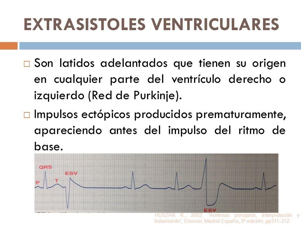 EXTRASISTOLES VENTRICULARES Son latidos adelantados que tienen su origen en cualquier parte del ventrículo derecho o izquierdo (Red de Purkinje). Impu