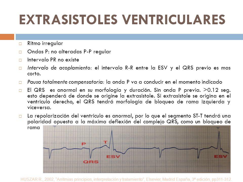 EXTRASISTOLES VENTRICULARES Ritmo irregular Ondas P: no alteradas P-P regular Intervalo PR no existe Intervalo de acoplamiento: el intervalo R-R entre