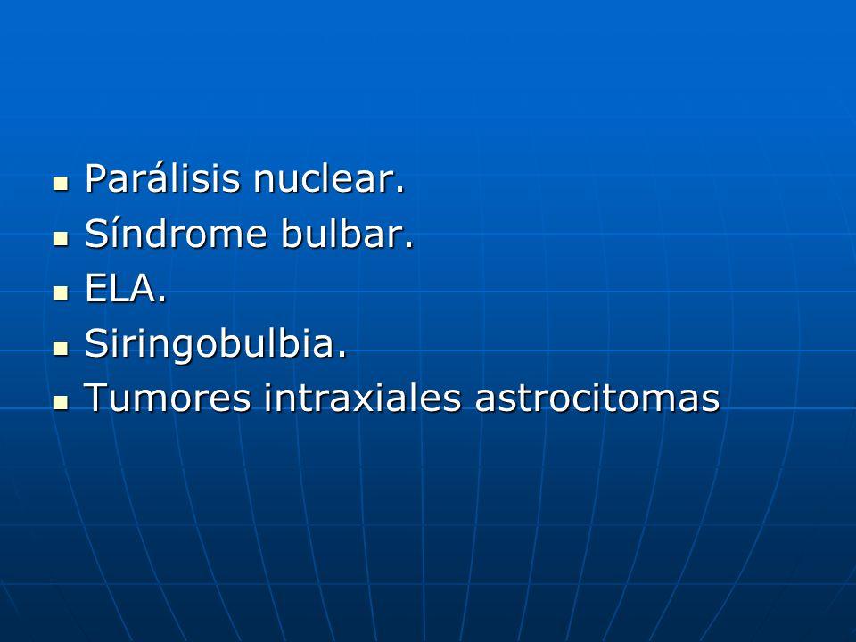 Parálisis nuclear. Parálisis nuclear. Síndrome bulbar. Síndrome bulbar. ELA. ELA. Siringobulbia. Siringobulbia. Tumores intraxiales astrocitomas Tumor