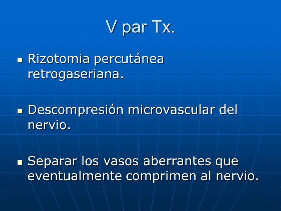 V par Tx. Rizotomia percutánea retrogaseriana. Rizotomia percutánea retrogaseriana. Descompresión microvascular del nervio. Descompresión microvascula
