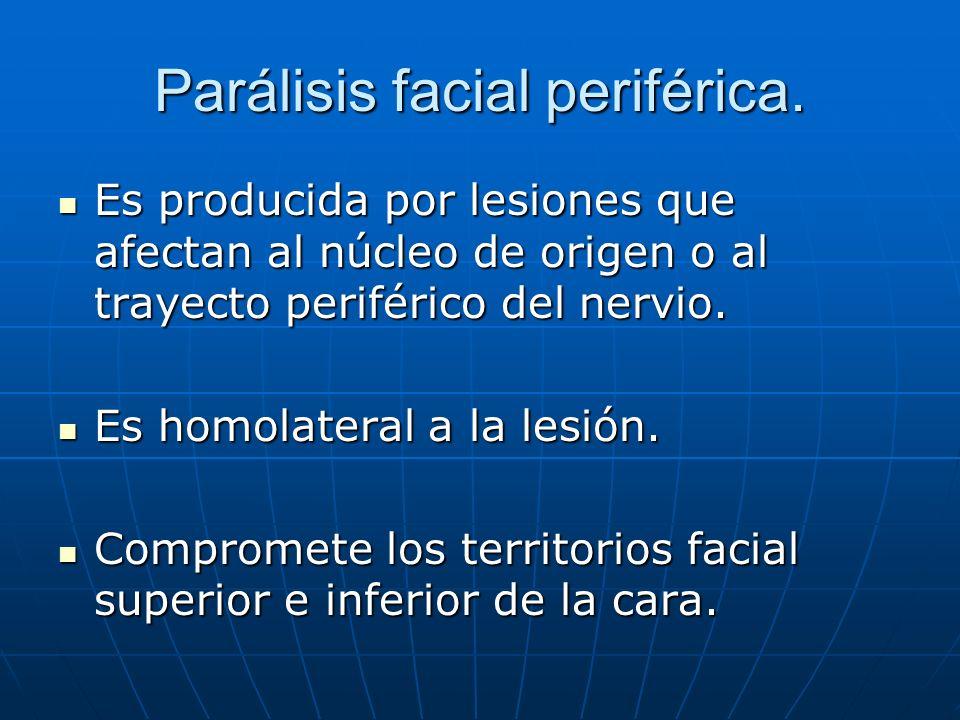 Parálisis facial periférica. Es producida por lesiones que afectan al núcleo de origen o al trayecto periférico del nervio. Es producida por lesiones